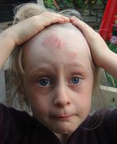 Με ΠΙΣΤΟΠΟΙΗΜΕΝΑ αιθέρια έλαια θεραπεύστε  τις μελανιές, καρούμπαλα κλπ των παιδιών