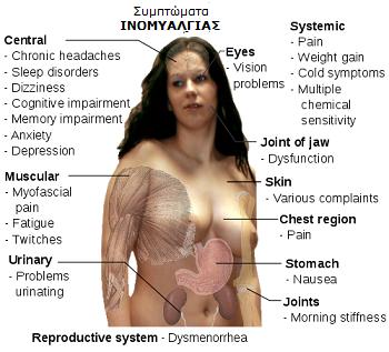 Ινομυαλγία - Fibromyalgia   θεραπεία με αιθέρια έλαια - ΙΑΤΡΙΚΗ ... 2697fd27a4d